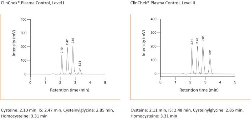 Chromatogramm Homocysteine Plasma