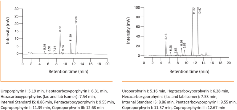 Chromatogram Porphyrins Differentiated Urine